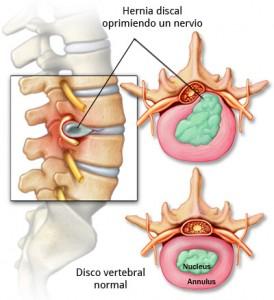 El dolor agudo en la espalda al movimiento que hacer