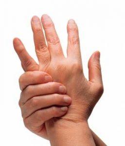 Curar artritis reumatoide en Zaragoza