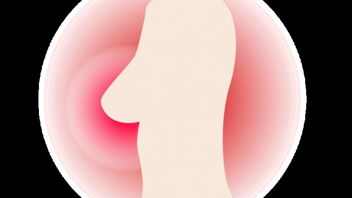 ¿Cómo ayuda la fisioterapia a las personas que sufren cáncer de mama?